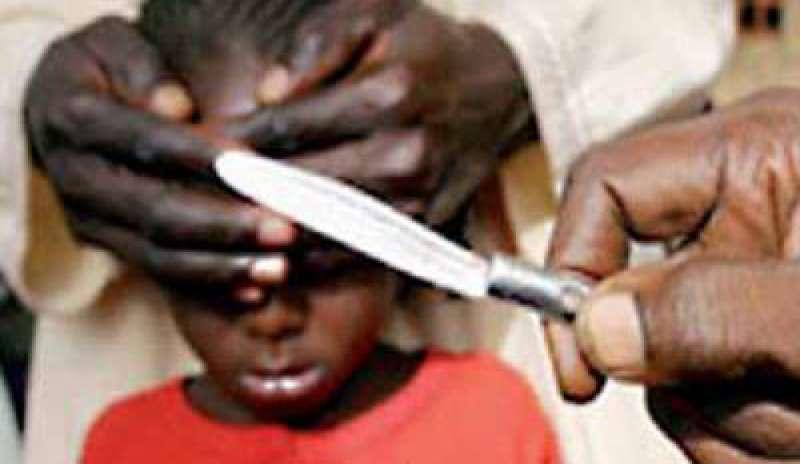 Mutilazioni